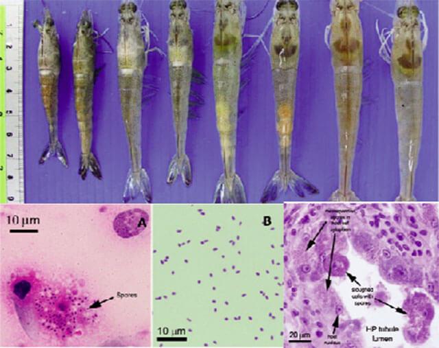 Bệnh vi bào tử trùng EHP